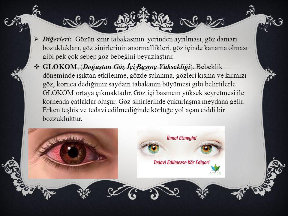  Diğerleri: Gözün sinir tabakasının yerinden ayrılması, göz damarı bozuklukları, göz sinirlerinin anormallikleri, göz içinde kanama olması gibi pek çok sebep göz bebeğini beyazlaştırır.