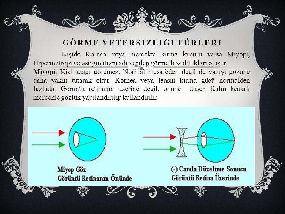 GÖRME YETERSIZLIĞI TÜRLERI Kişide Kornea veya mercekte kırma kusuru varsa Miyopi, Hipermetropi ve astigmatizm adı verilen görme bozuklukları oluşur.