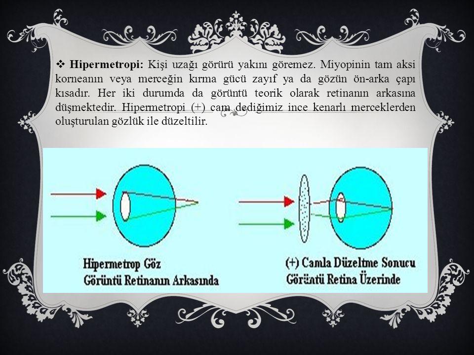  Hipermetropi: Kişi uzağı görürü yakını göremez. Miyopinin tam aksi korneanın veya merceğin kırma gücü zayıf ya da gözün ön-arka çapı kısadır. Her ik