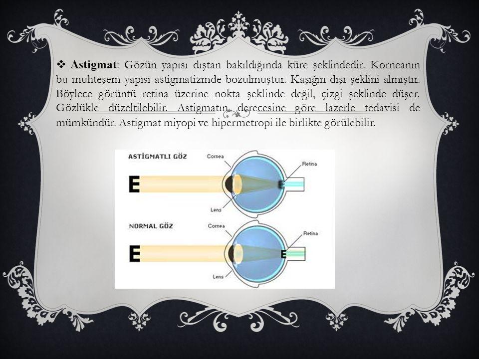  Astigmat : Gözün yapısı dıştan bakıldığında küre şeklindedir. Korneanın bu muhteşem yapısı astigmatizmde bozulmuştur. Kaşığın dışı şeklini almıştır.