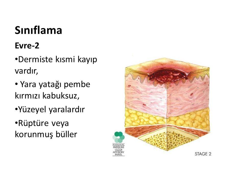 Sınıflama Evre-2 Dermiste kısmi kayıp vardır, Yara yatağı pembe kırmızı kabuksuz, Yüzeyel yaralardır Rüptüre veya korunmuş büller
