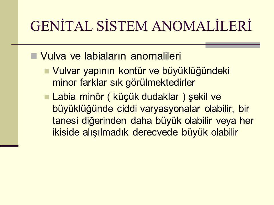 GENİTAL SİSTEM ANOMALİLERİ Vulva ve labiaların anomalileri Vulvar yapının kontür ve büyüklüğündeki minor farklar sık görülmektedirler Labia minör ( kü