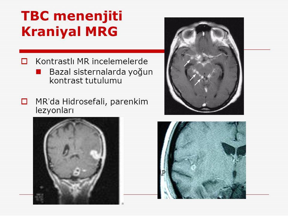 TBC menenjiti Kraniyal MRG  Kontrastlı MR incelemelerde Bazal sisternalarda yoğun kontrast tutulumu  MR ' da Hidrosefali, parenkim lezyonları