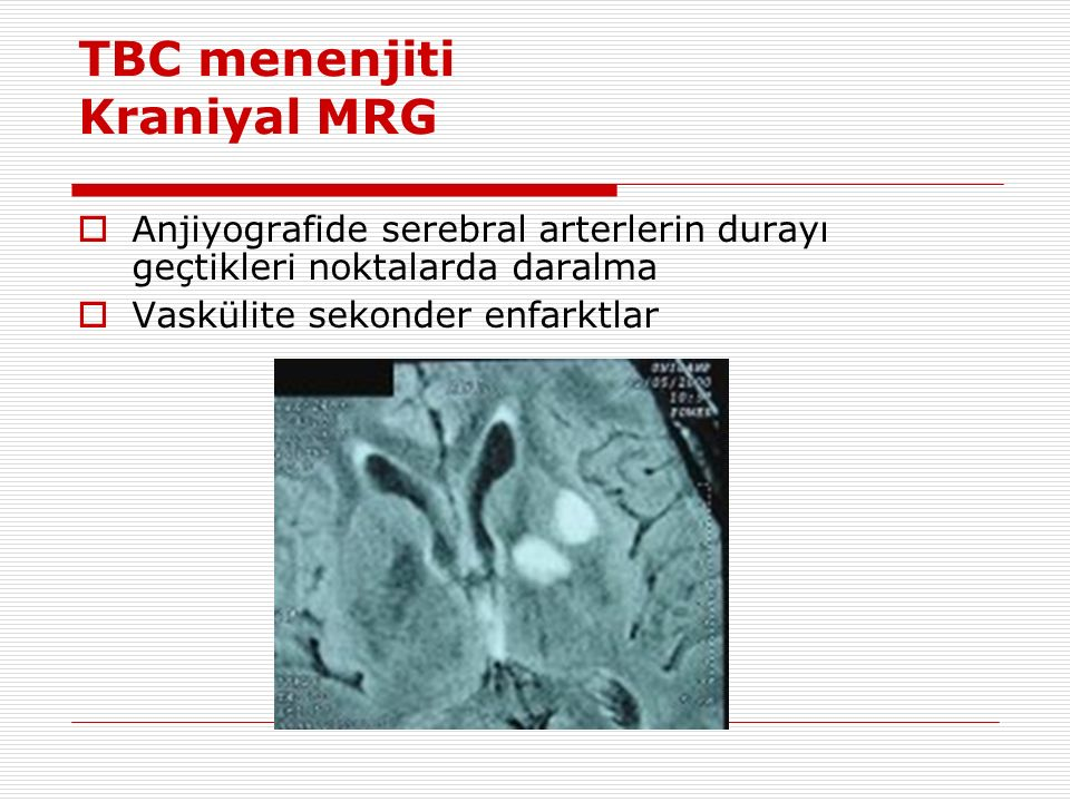 TBC menenjiti Kraniyal MRG  Anjiyografide serebral arterlerin durayı geçtikleri noktalarda daralma  Vaskülite sekonder enfarktlar