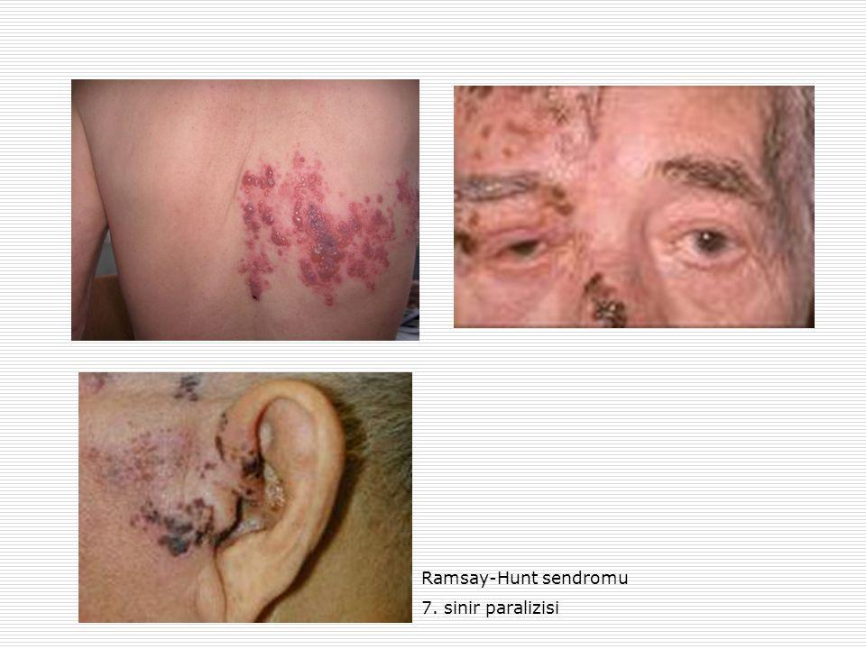 Ramsay-Hunt sendromu 7. sinir paralizisi