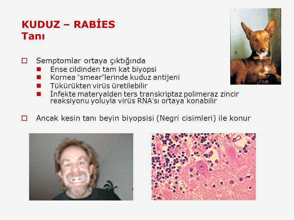 KUDUZ – RABİES Tanı  Semptomlar ortaya çıktığında Ense cildinden tam kat biyopsi Kornea smear lerinde kuduz antijeni Tükürükten virüs üretilebilir İnfekte materyalden ters transkriptaz polimeraz zincir reaksiyonu yoluyla virüs RNA ' sı ortaya konabilir  Ancak kesin tanı beyin biyopsisi (Negri cisimleri) ile konur
