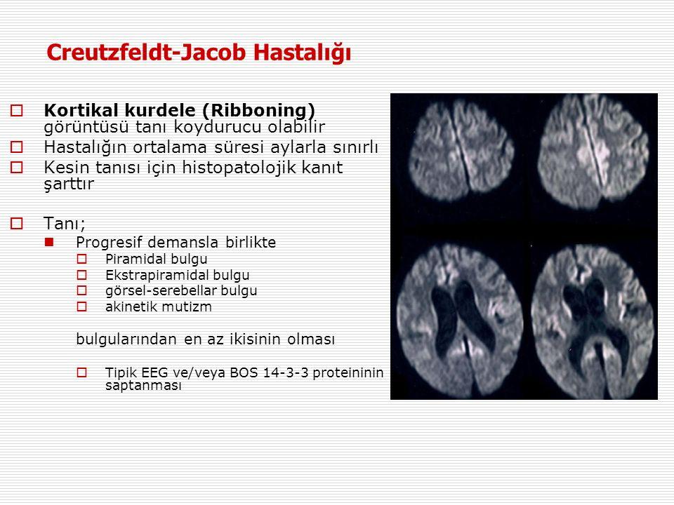  Kortikal kurdele (Ribboning) görüntüsü tanı koydurucu olabilir  Hastalığın ortalama süresi aylarla sınırlı  Kesin tanısı için histopatolojik kanıt şarttır  Tanı ; Progresif demansla birlikte  Piramidal bulgu  Ekstrapiramidal bulgu  görsel-serebellar bulgu  akinetik mutizm bulgularından en az ikisinin olması  Tipik EEG ve/veya BOS 14-3-3 proteininin saptanması Creutzfeldt-Jacob Hastalığı