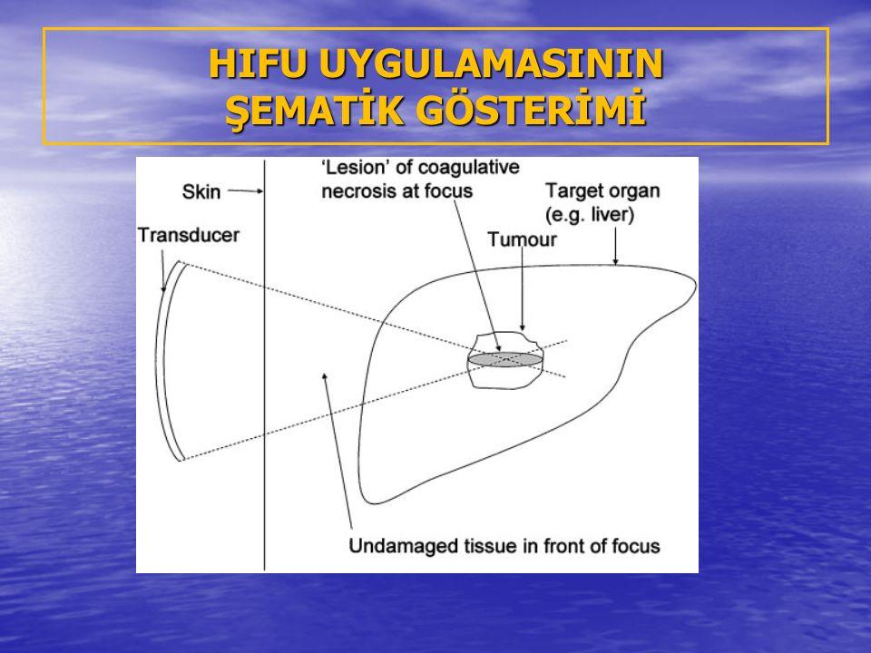 Jinekoloji Kongresi'nde en büyük ilgiyi, ses dalgasıyla ameliyatsız miyom tedavisi gördü (07.04.2011)