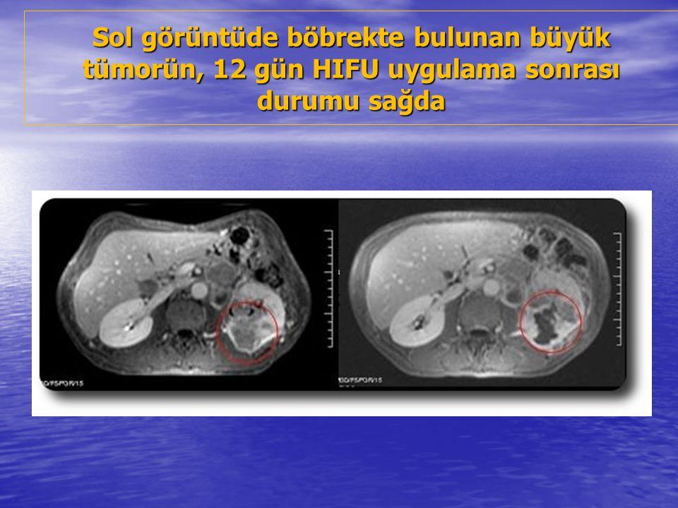 Sol görüntüde böbrekte bulunan büyük tümorün, 12 gün HIFU uygulama sonrası durumu sağda