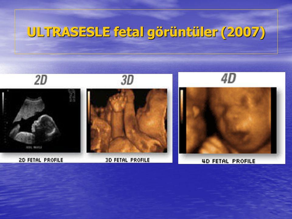 ULTRASESLE fetal görüntüler (2007)