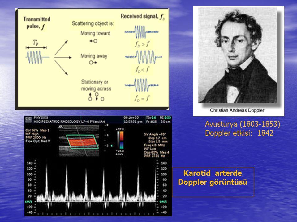 Karotid arterde Doppler görüntüsü Avusturya (1803-1853) Doppler etkisi: 1842