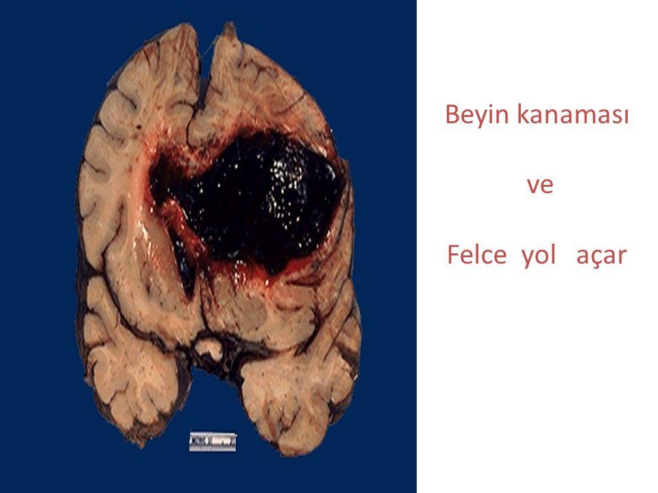 Beyin kanaması ve Felce yol açar