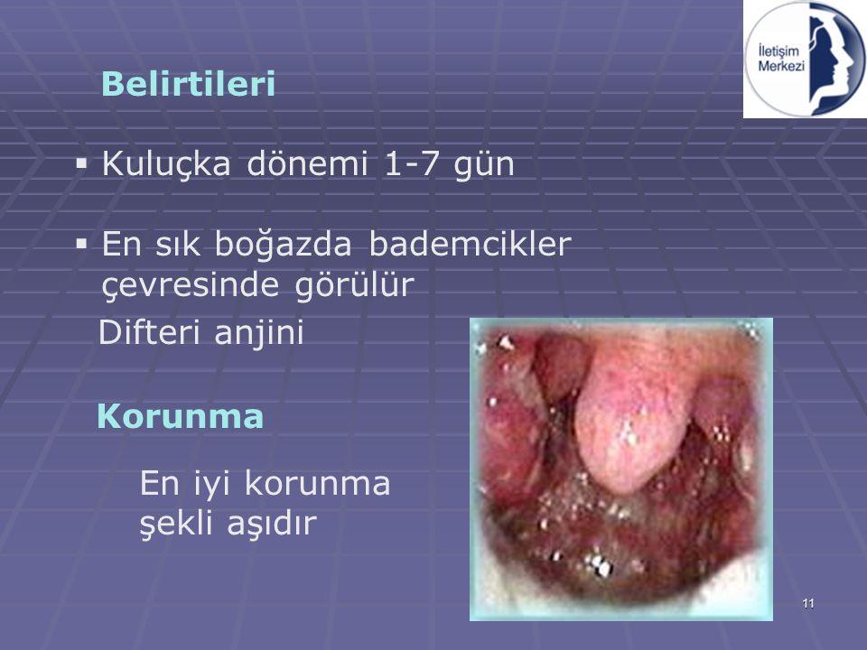 11 Belirtileri  Kuluçka dönemi 1-7 gün  En sık boğazda bademcikler çevresinde görülür Difteri anjini Korunma En iyi korunma şekli aşıdır