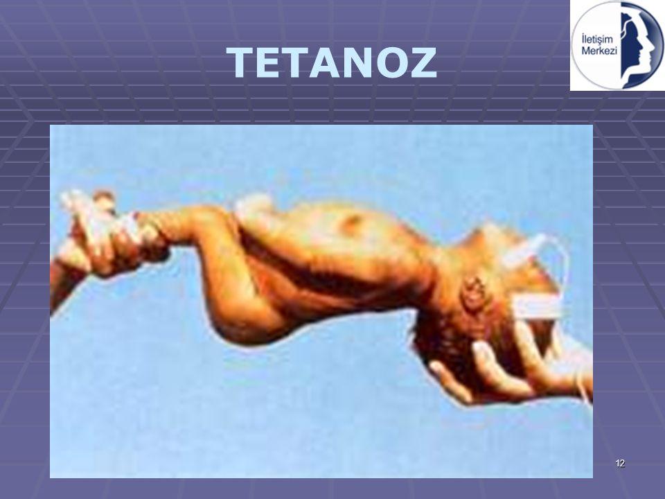 12 TETANOZ