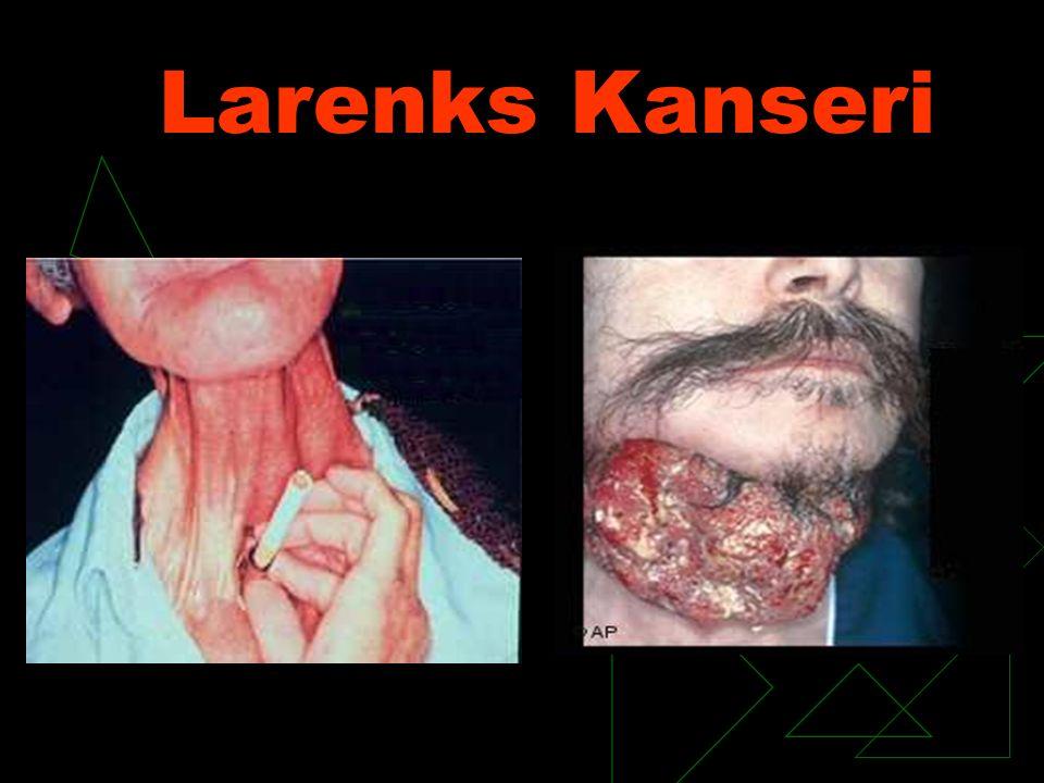 Larenks Kanseri