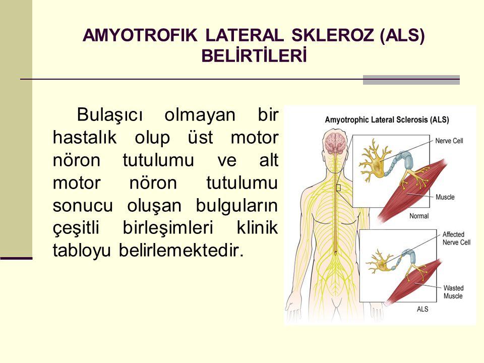 AMYOTROFIK LATERAL SKLEROZ (ALS) BELİRTİLERİ Bulaşıcı olmayan bir hastalık olup üst motor nöron tutulumu ve alt motor nöron tutulumu sonucu oluşan bul
