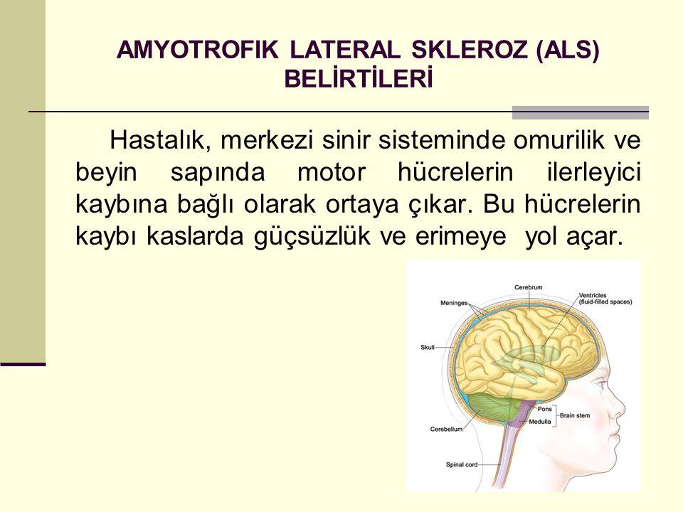 AMYOTROFIK LATERAL SKLEROZ (ALS) BELİRTİLERİ Hastalık, merkezi sinir sisteminde omurilik ve beyin sapında motor hücrelerin ilerleyici kaybına bağlı ol