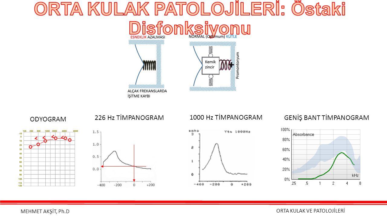 ORTA KULAK VE PATOLOJİLERİ MEHMET AKŞİT, Ph.D + ODYOGRAM 226 Hz TİMPANOGRAM 1000 Hz TİMPANOGRAM GENİŞ BANT TİMPANOGRAM