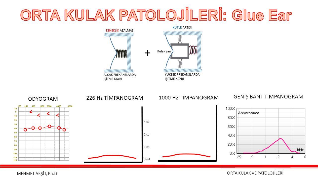 ORTA KULAK VE PATOLOJİLERİ MEHMET AKŞİT, Ph.D + ODYOGRAM 226 Hz TİMPANOGRAM 4 cc 2 cc 1 cc 0 ml 1000 Hz TİMPANOGRAM GENİŞ BANT TİMPANOGRAM