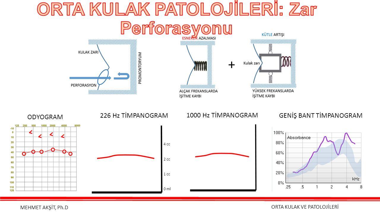 ORTA KULAK VE PATOLOJİLERİ MEHMET AKŞİT, Ph.D 1000 Hz TİMPANOGRAM + ODYOGRAM GENİŞ BANT TİMPANOGRAM226 Hz TİMPANOGRAM 4 cc 2 cc 1 cc 0 ml