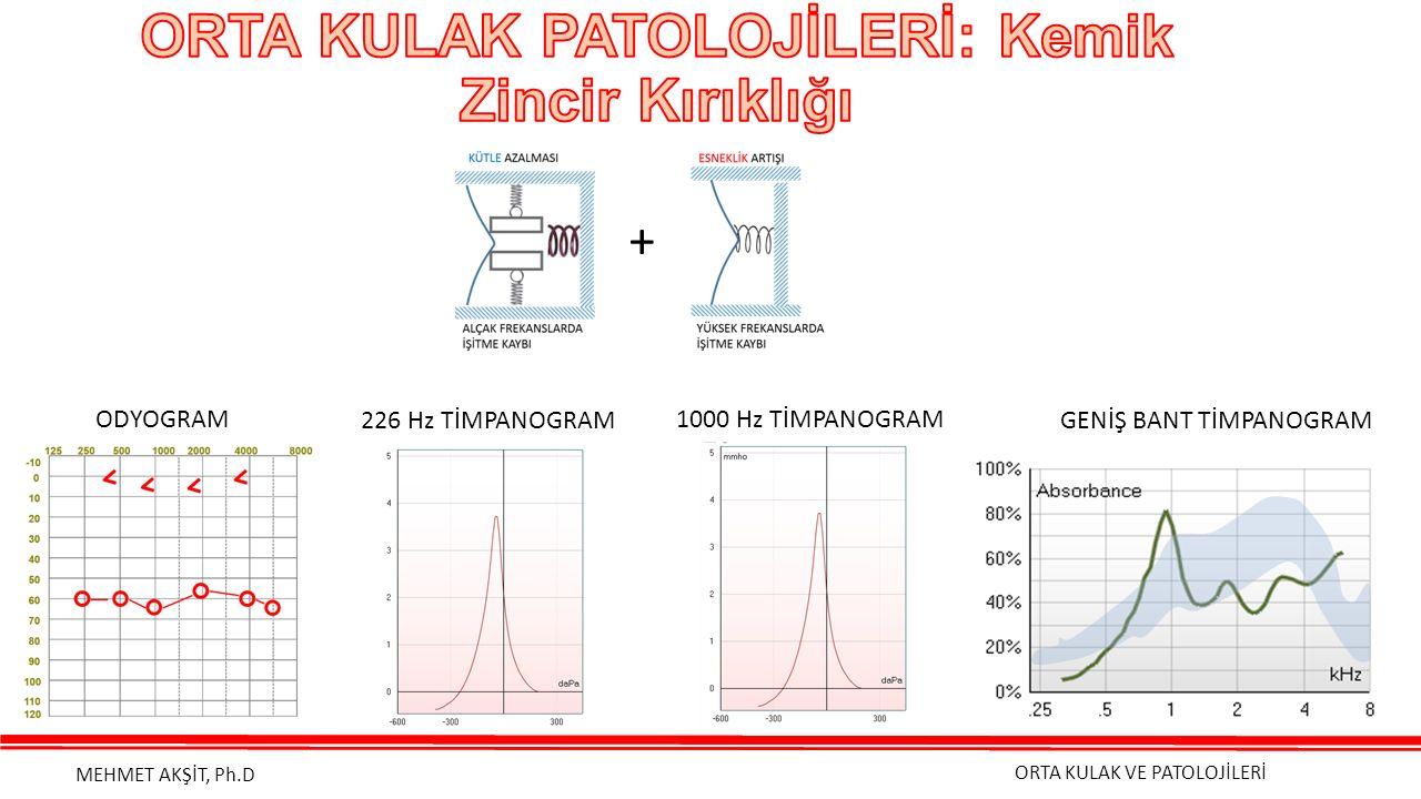 ORTA KULAK VE PATOLOJİLERİ MEHMET AKŞİT, Ph.D + ODYOGRAM 1000 Hz TİMPANOGRAM GENİŞ BANT TİMPANOGRAM226 Hz TİMPANOGRAM