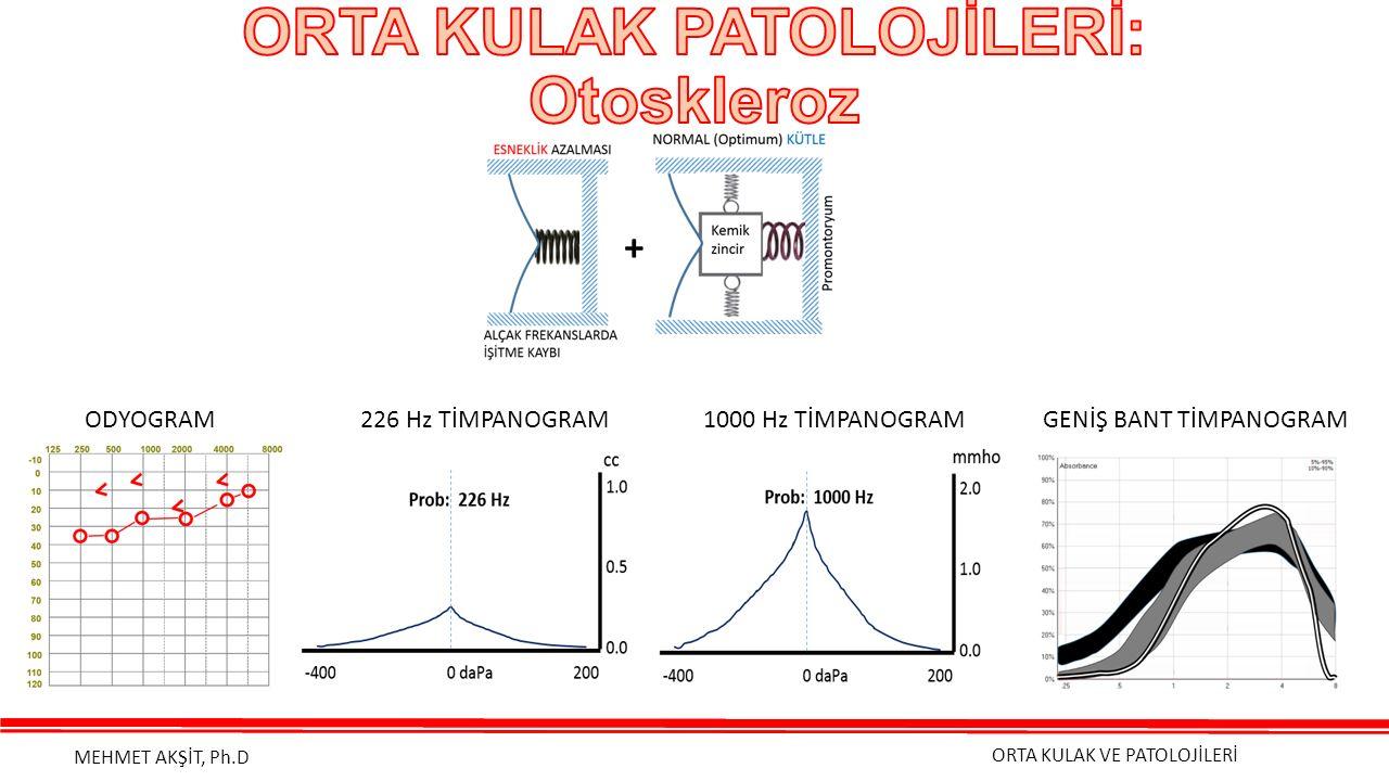 ORTA KULAK VE PATOLOJİLERİ MEHMET AKŞİT, Ph.D ODYOGRAM 226 Hz TİMPANOGRAM 1000 Hz TİMPANOGRAM GENİŞ BANT TİMPANOGRAM +