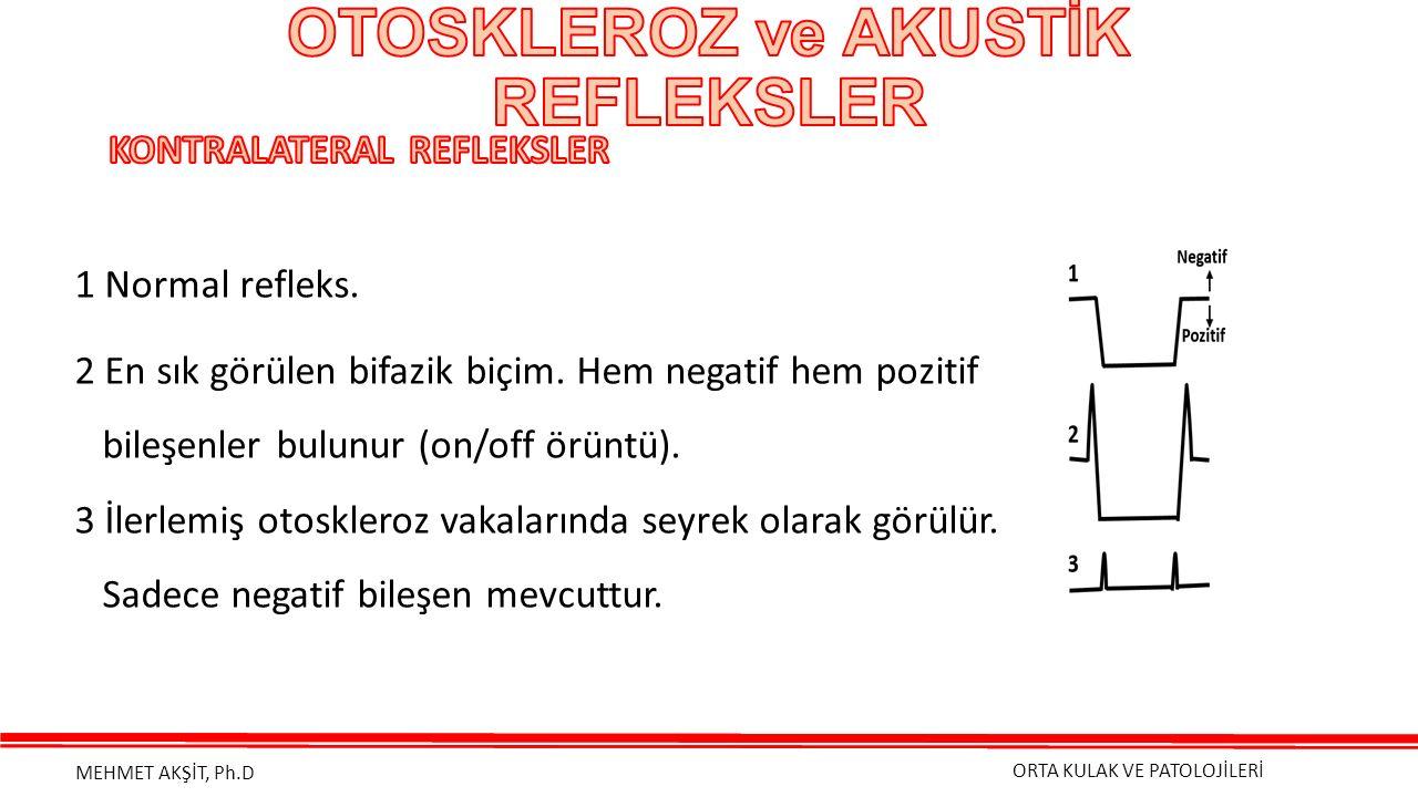 ORTA KULAK VE PATOLOJİLERİ MEHMET AKŞİT, Ph.D 1 Normal refleks.