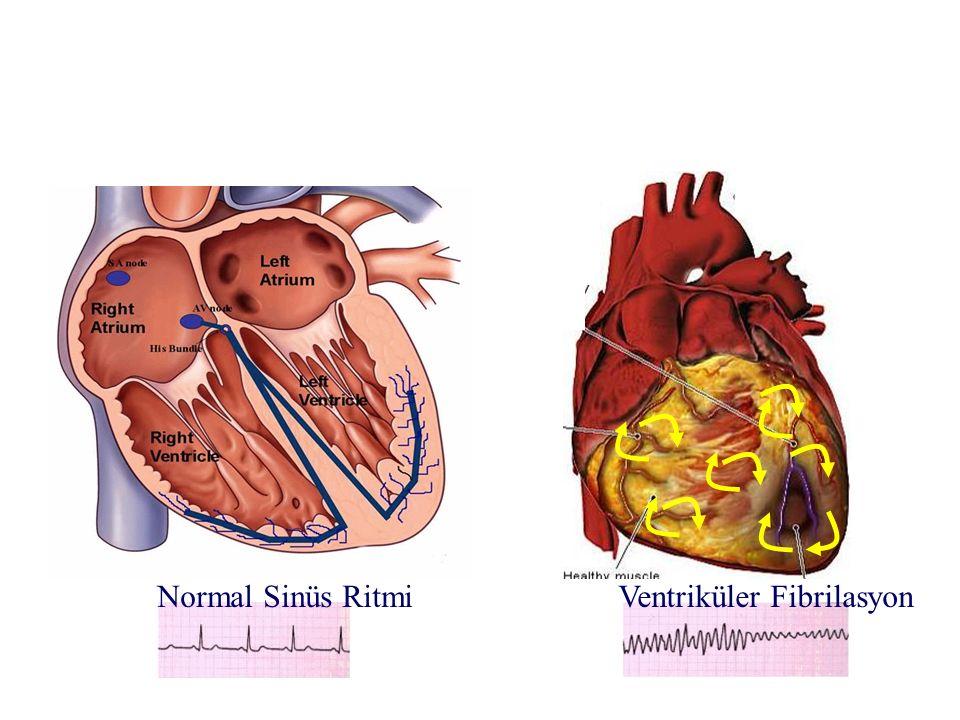 Ventriküler FibrilasyonNormal Sinüs Ritmi