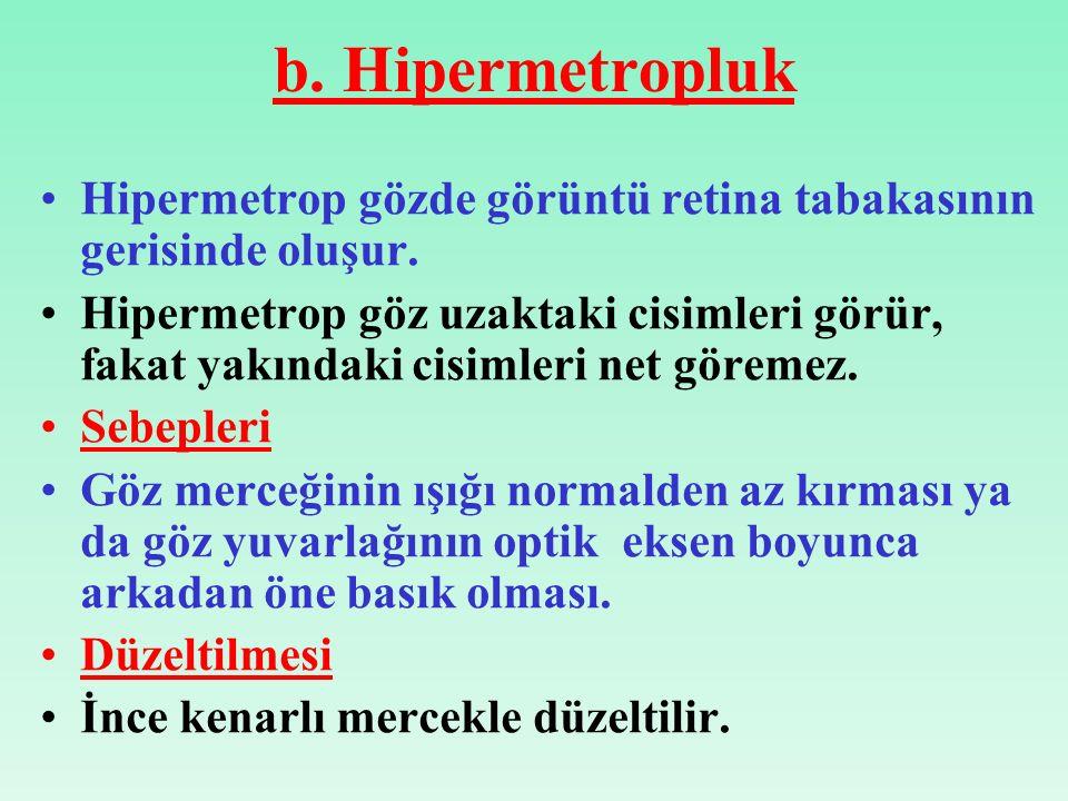 b.Hipermetropluk Hipermetrop gözde görüntü retina tabakasının gerisinde oluşur.