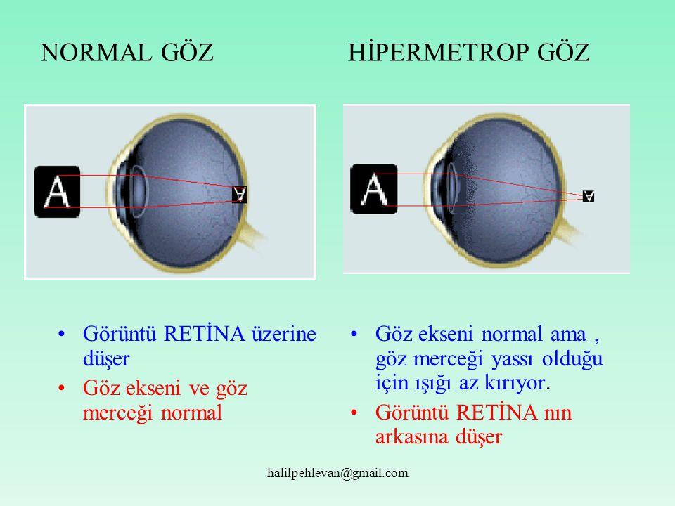 halilpehlevan@gmail.com NORMAL GÖZ HİPERMETROP GÖZ Göz ekseni normal ama, göz merceği yassı olduğu için ışığı az kırıyor.