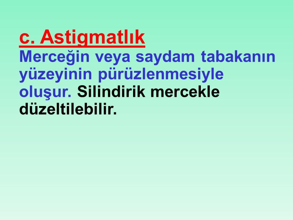 c.Astigmatlık Merceğin veya saydam tabakanın yüzeyinin pürüzlenmesiyle oluşur.