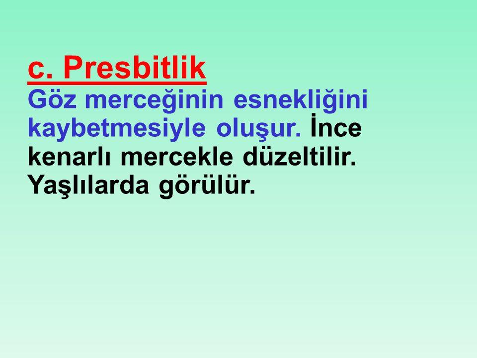 c.Presbitlik Göz merceğinin esnekliğini kaybetmesiyle oluşur.