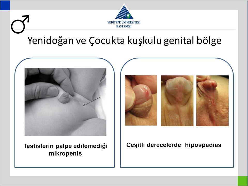 Yenidoğan ve Çocukta kuşkulu genital bölge Testislerin palpe edilemediği mikropenis Çeşitli derecelerde hipospadias