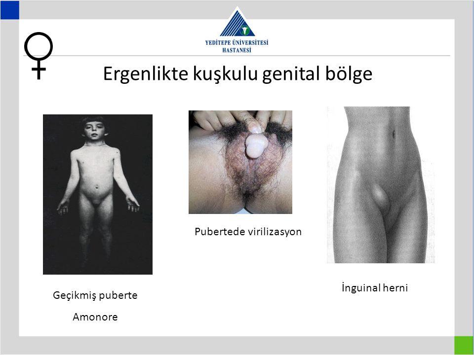 Ergenlikte kuşkulu genital bölge Pubertede virilizasyon İnguinal herni Geçikmiş puberte Amonore