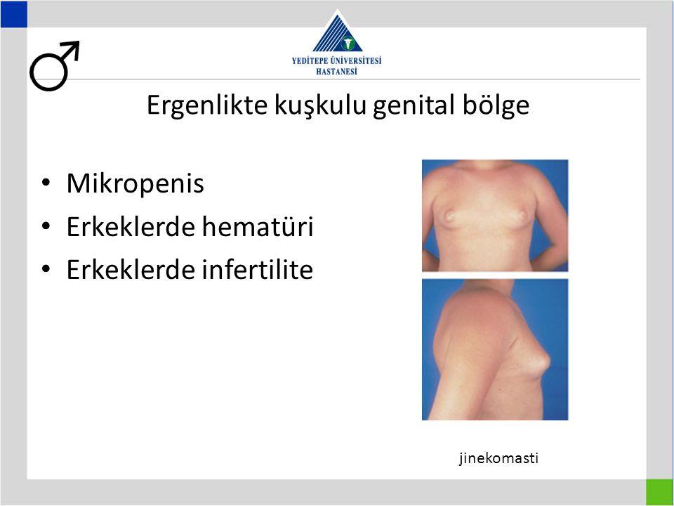 Mikropenis Erkeklerde hematüri Erkeklerde infertilite Ergenlikte kuşkulu genital bölge jinekomasti