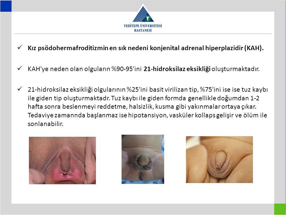 Kız psödohermafroditizmin en sık nedeni konjenital adrenal hiperplazidir (KAH).
