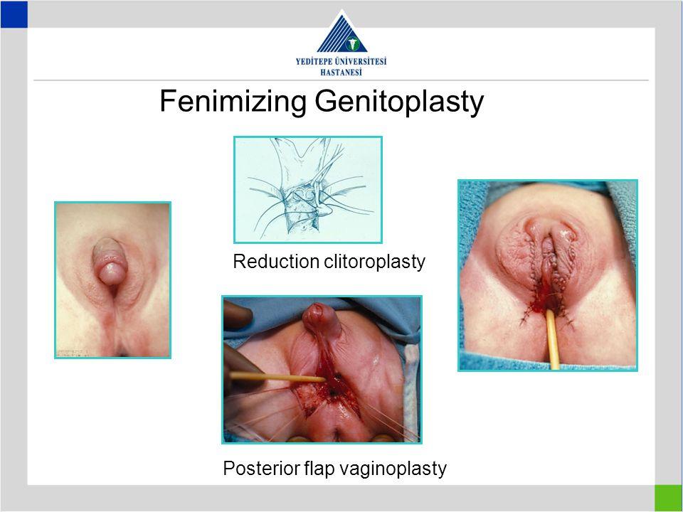 Fenimizing Genitoplasty Posterior flap vaginoplasty Reduction clitoroplasty