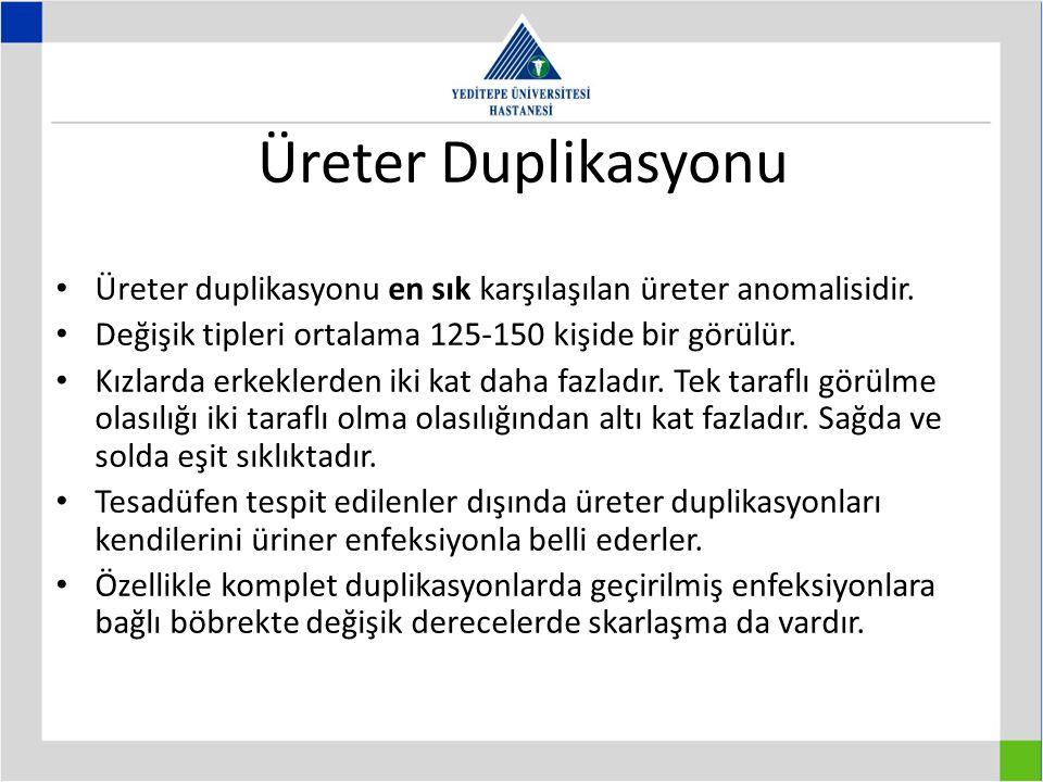 Üreter Duplikasyonu Üreter duplikasyonu en sık karşılaşılan üreter anomalisidir.