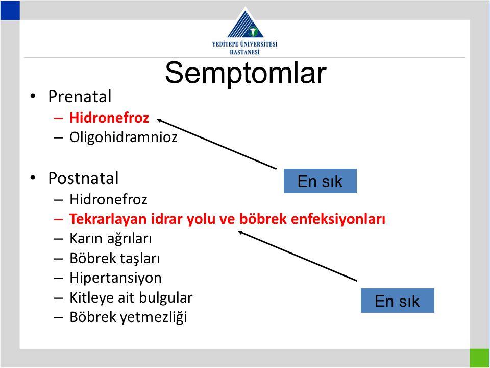 Semptomlar Prenatal – Hidronefroz – Oligohidramnioz Postnatal – Hidronefroz – Tekrarlayan idrar yolu ve böbrek enfeksiyonları – Karın ağrıları – Böbrek taşları – Hipertansiyon – Kitleye ait bulgular – Böbrek yetmezliği En sık