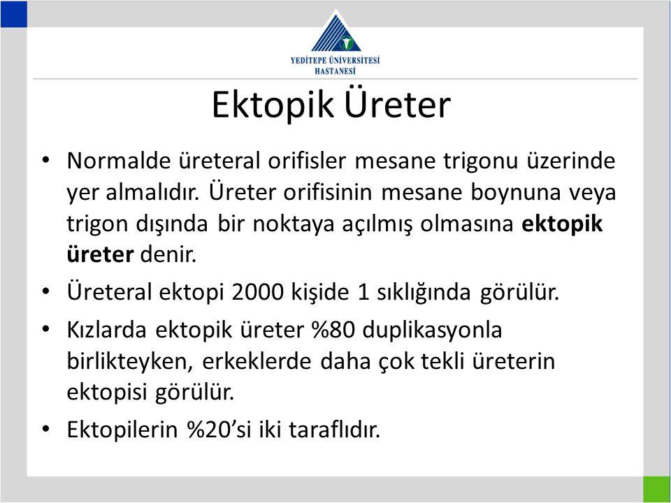 Ektopik Üreter Normalde üreteral orifisler mesane trigonu üzerinde yer almalıdır.