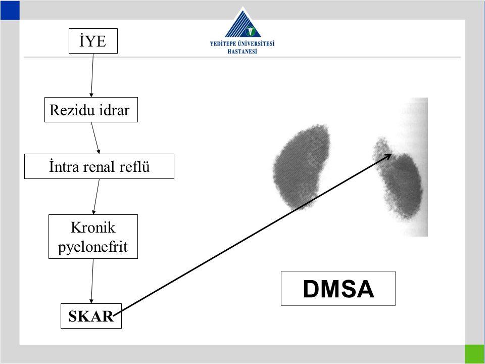 İYE Rezidu idrar İntra renal reflü Kronik pyelonefrit SKAR DMSA