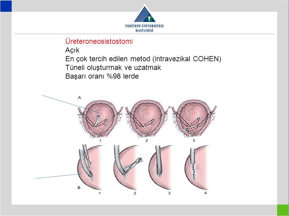 Üreteroneosistostomi Açık En çok tercih edilen metod (intravezikal COHEN) Tüneli oluşturmak ve uzatmak Başarı oranı %98 lerde