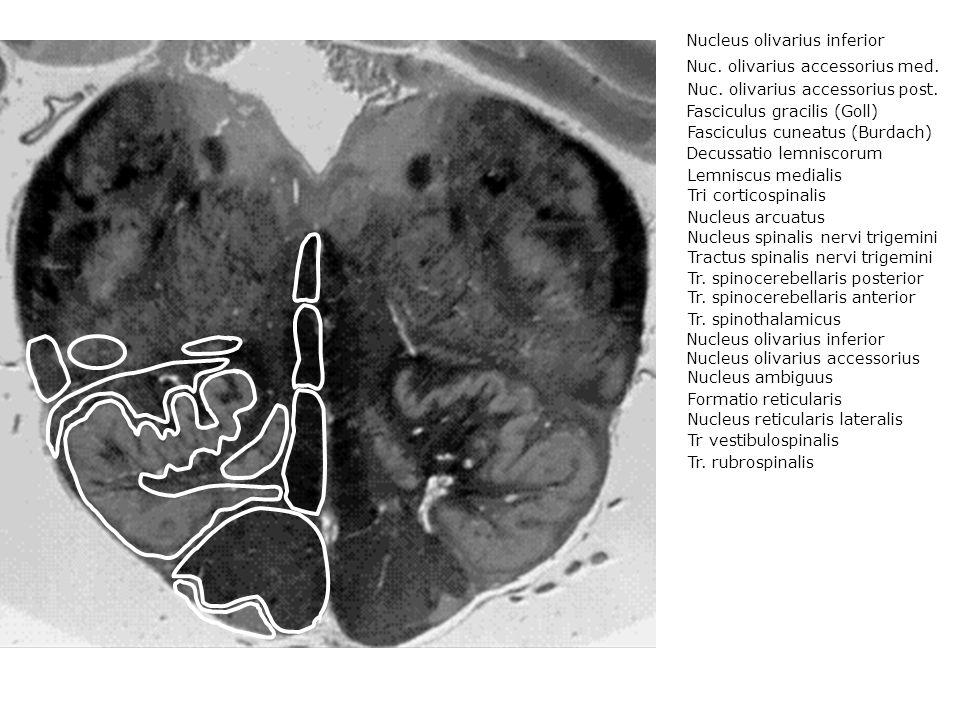 Nucleus olivarius inferior Nuc. olivarius accessorius med.