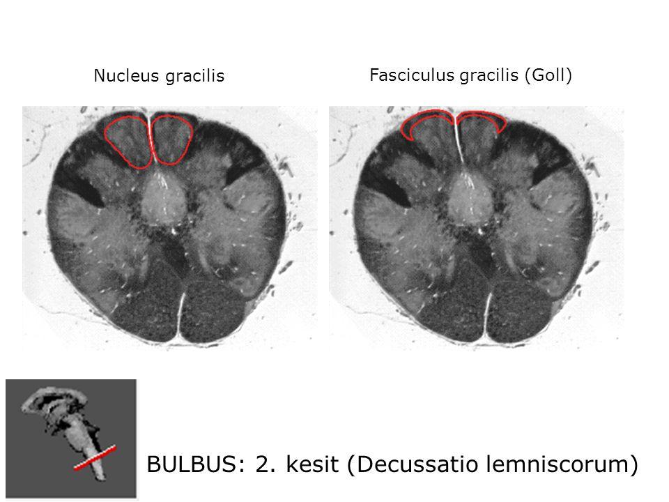 BULBUS: 2. kesit (Decussatio lemniscorum) Nucleus gracilis Fasciculus gracilis (Goll)