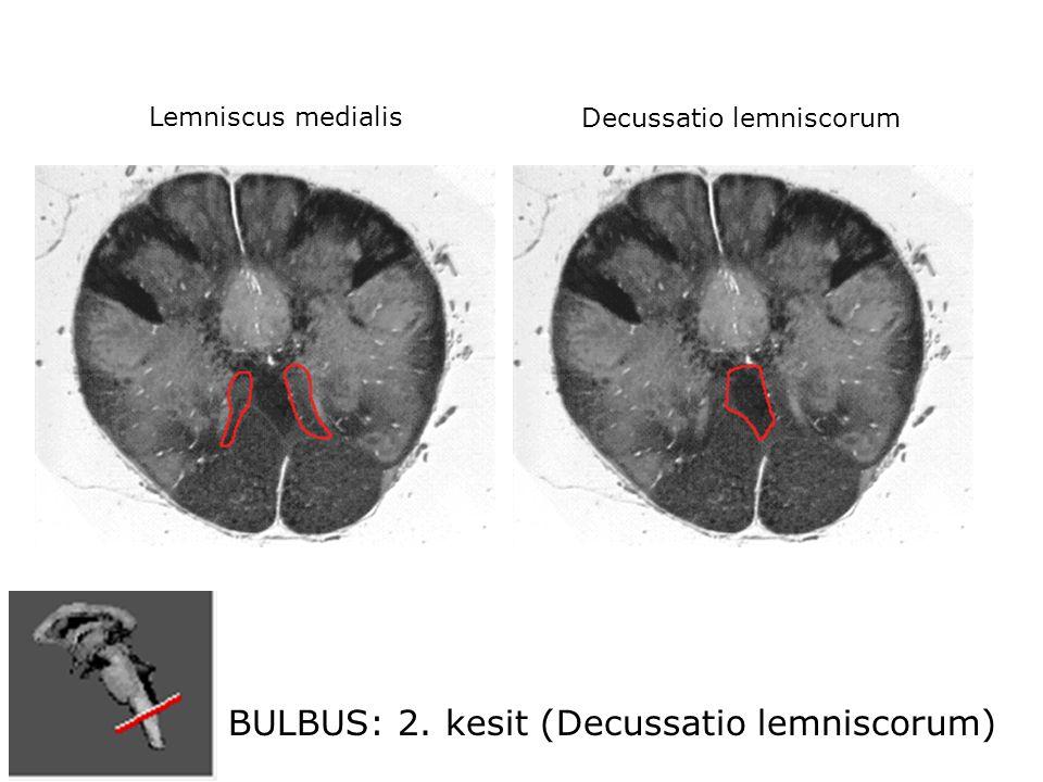 BULBUS: 2. kesit (Decussatio lemniscorum) Decussatio lemniscorum Lemniscus medialis