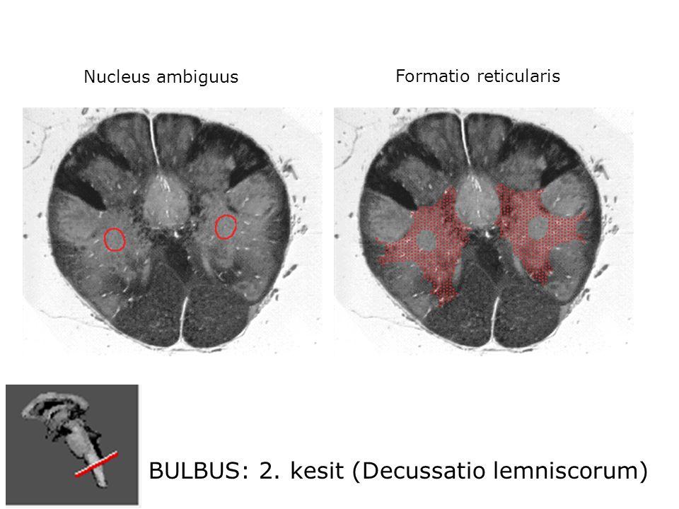 BULBUS: 2. kesit (Decussatio lemniscorum) Nucleus ambiguus Formatio reticularis
