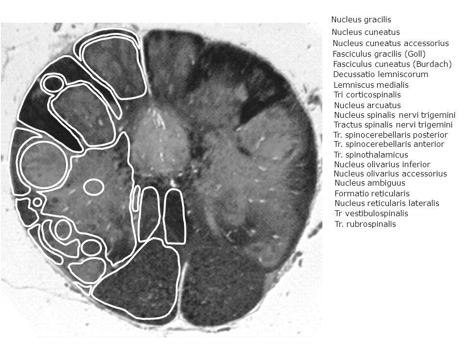 Nucleus cuneatus Nucleus cuneatus accessorius Fasciculus gracilis (Goll) Fasciculus cuneatus (Burdach) Decussatio lemniscorum Lemniscus medialis Tri corticospinalis Nucleus arcuatus Nucleus spinalis nervi trigemini Tractus spinalis nervi trigemini Tr.