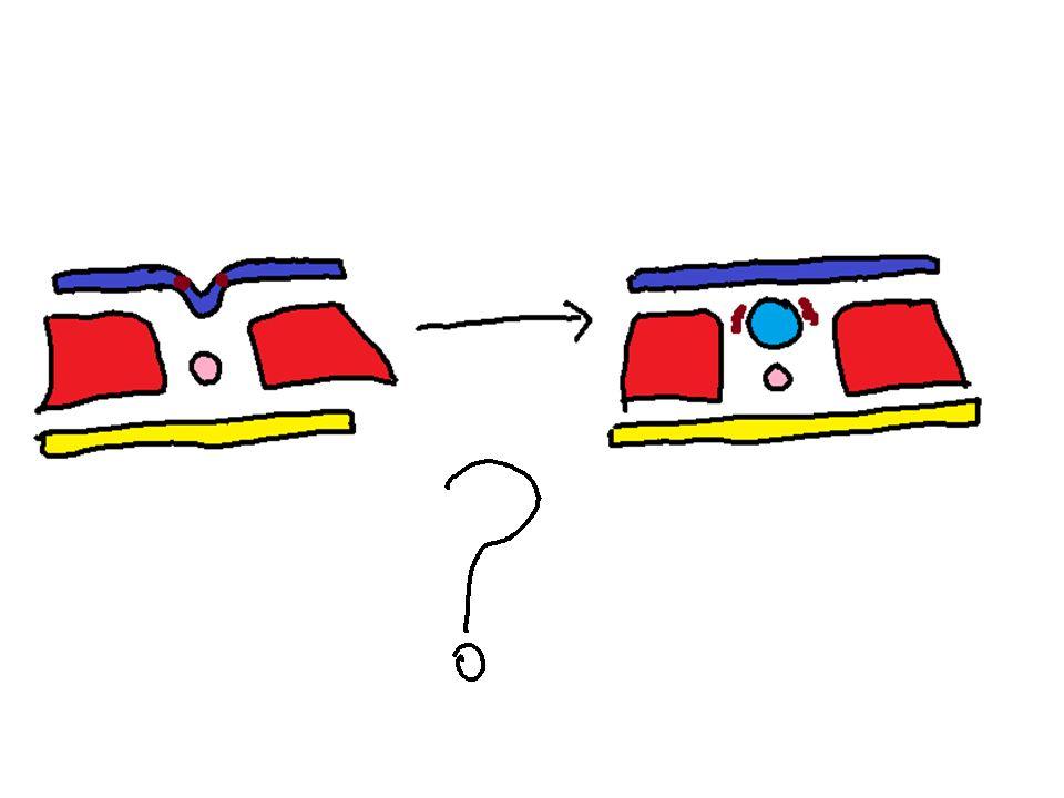 Nöronal Göç Somal translokasyon