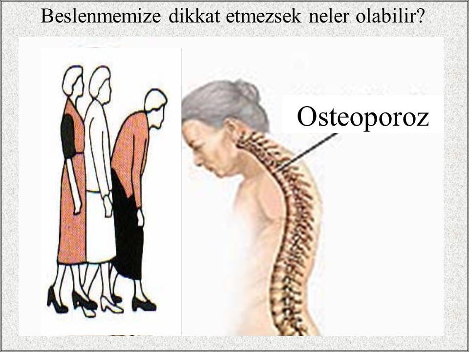 18 Beslenmemize dikkat etmezsek neler olabilir? Osteoporoz