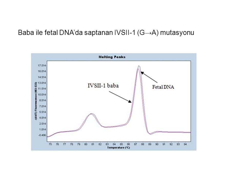 Baba ile fetal DNA'da saptanan IVSII-1 (G→A) mutasyonu